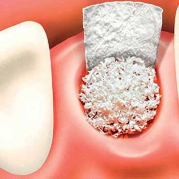Bone Graft | Tooth Suite Dental | General Dentist | Lloydminster