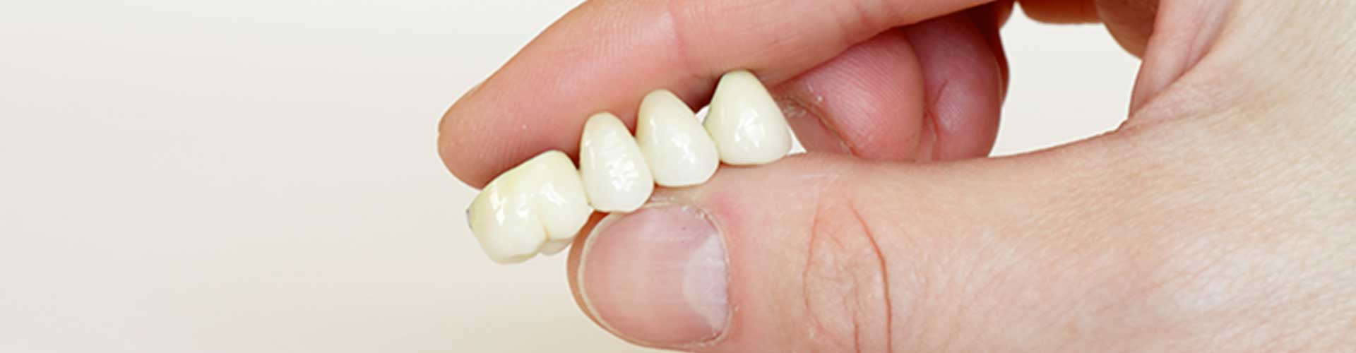 Dental Bridge | Tooth Suite Family Dentistry | General Dentist | Lloydminster