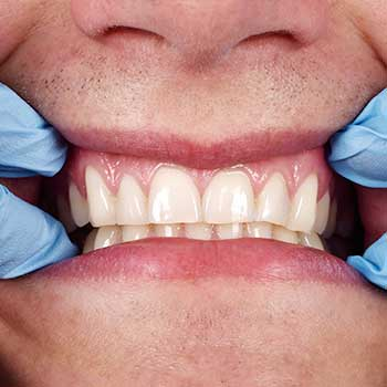 Oral Pathology | Tooth Suit Family Dentistry | General Dentist | Lloydminster