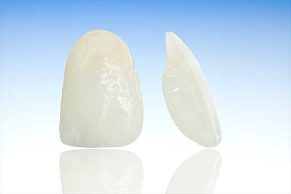 Porcelain Veneers | Tooth Suite Family Dentistry | General Dentist | Lloydminster