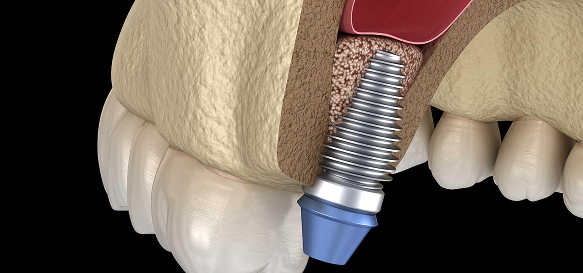Sinus Lift | Tooth Suite Family Dentistry | General Dentist | Lloydminster