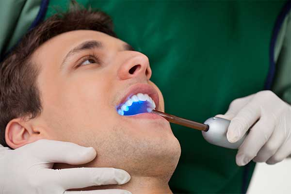Tooth Bonding | Tooth Suite Family Dentistry | General Dentist | Lloydminster